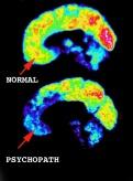 sociopath brain